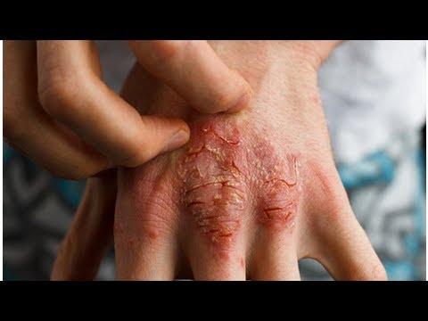 zinc cream and eczema - EczemaBlog