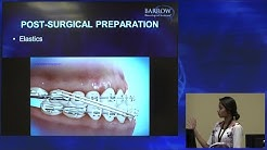 Role of Braces Before & After Jaw Surgery