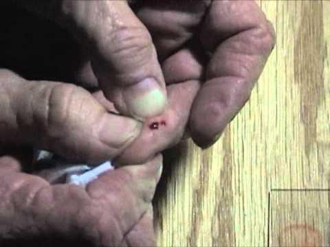 Blood Slide Prep