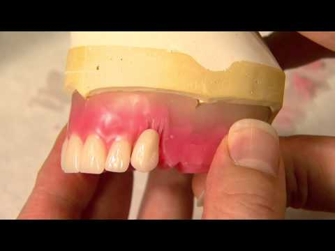 how to stop reabsorption denture