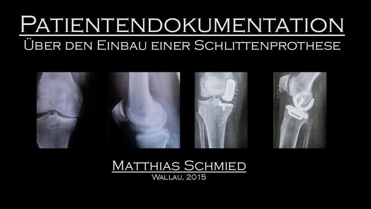 Schmerzen Nach Knie Op Wie Lange