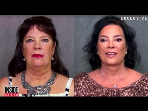 Kris Jenner's sister Karen Houghton awake facelift by Best Facelift Plastic Surgeon in Beverly Hills