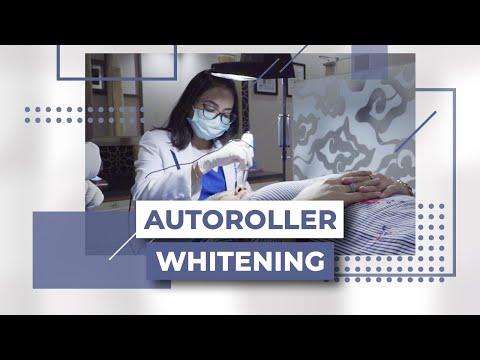 Autoroller Whitening Klinik Estetika Dr. Affandi