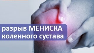 Разрыв мениска коленного сустава. Лечение разрыва мениска коленного сустава, операция.(Диагностика и лечение разрыва мениска коленного сустава A24pTR— сложный процесс, требующий от доктора специа..., 2016-10-31T03:34:20.000Z)