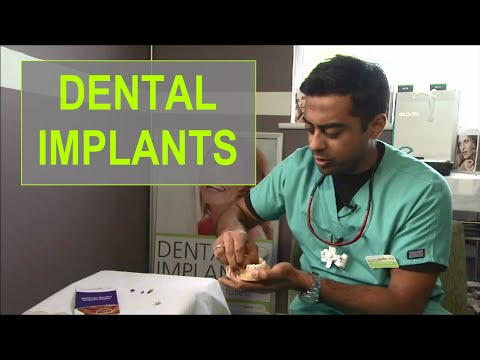 Best Affordable Dental Implants at Synergy Dental Clinic in Blackpool UK