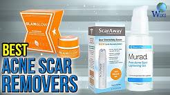 hqdefault - Face Cream For Acne Scar