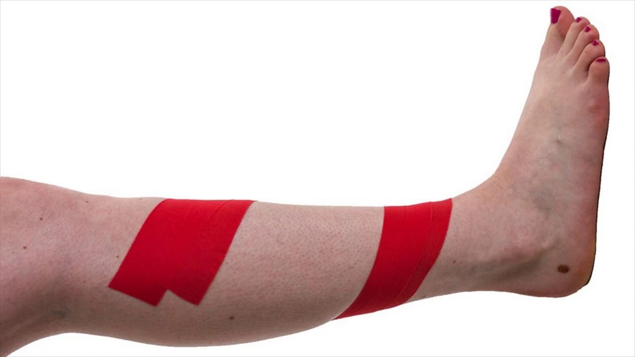 Symptoms Of Shin Splints Common Causes Of Shin Splints Youtube