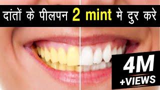 how to make teeth white