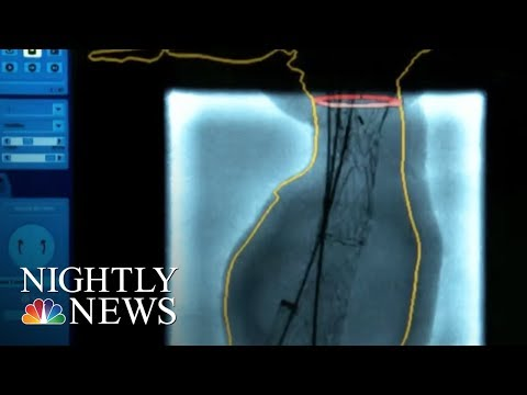 Download Youtube: New hope for those with 'ticking time bomb' aneurysms | NBC Nightly News
