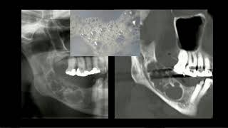 Video Ameloblastoma download MP3, 3GP, MP4, WEBM, AVI, FLV Agustus 2018