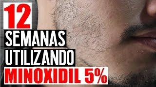 Resultados Con Minoxidil 5% ( 12 Semanas)   Jr Style For Men