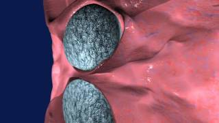 3D хирургическая техника введения Opsys (Опсис)