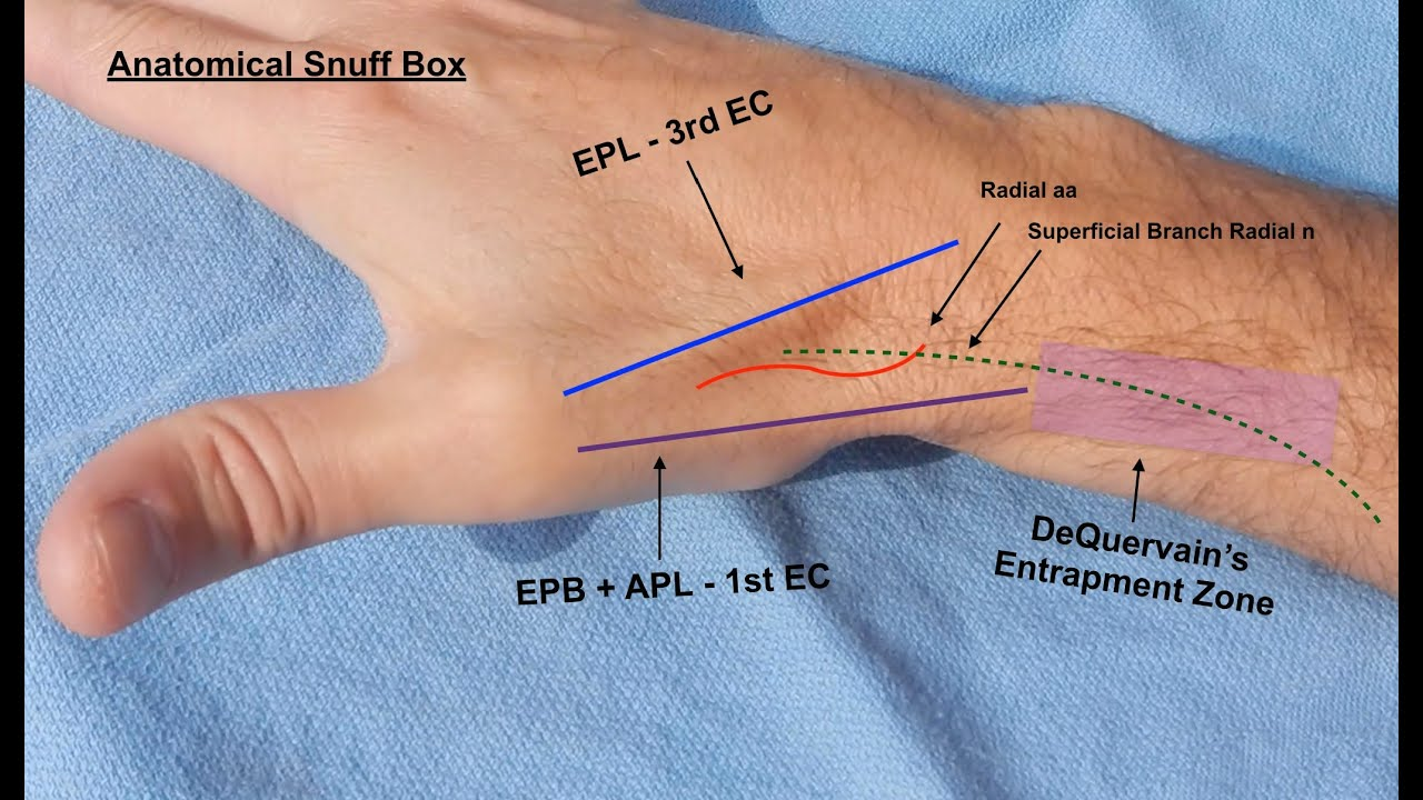 dequervain's tendonitis corticosteroid injection