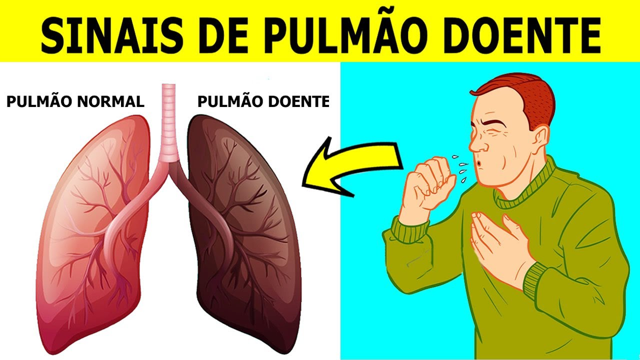 5 SINAIS DE PULMÃO DOENTE