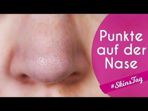 PUNKTE AUF DER NASE sind keine Mitesser: Finger weg von Nose Strips! // #SkinsTag
