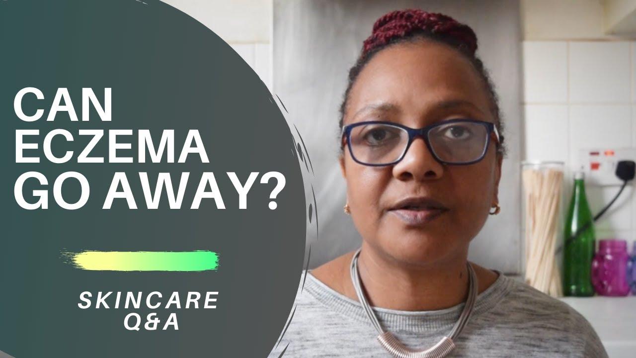 Can Eczema Go Away?