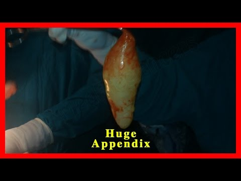 Appendectomy - Surgical Procedure for Appendix Removal