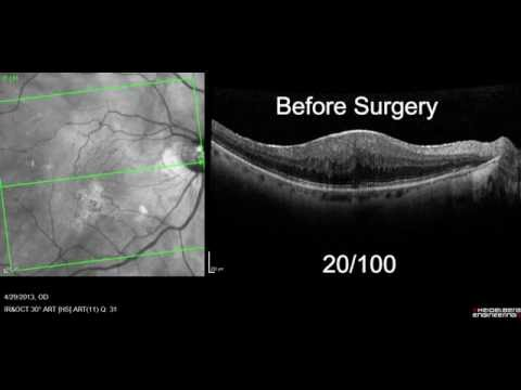 Macular Pucker With Oct Retinal Scan Before After Surgery Youtube