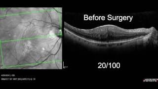 Macular Pucker with OCT Retinal Scan before/after surgery