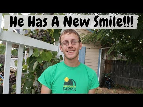 Dentist Vlog | First Day with New Teeth | Before and After Dentures