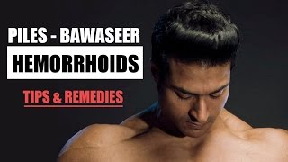 How to cure Hemorrhoids - Piles (बवासीर) | Tips & Remedies by Guru Mann