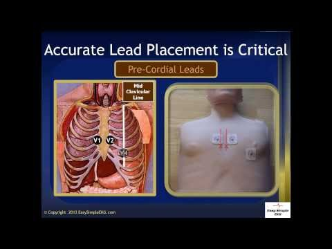 EKG Lead Placement