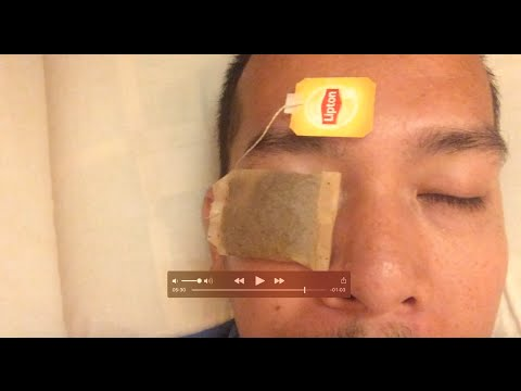 How to treat a swollen eye while on a trip to another country?
