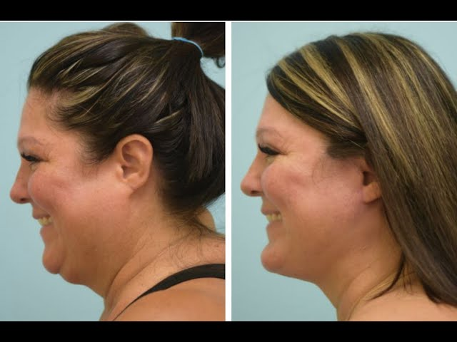 Deep-Plane Facelift & Extended Anatomic Chin Implant Testimonial