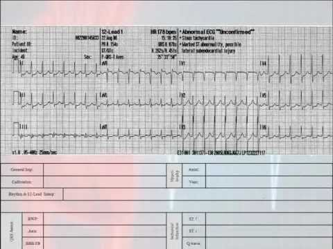 12 Lead Interpretation Part 6-2: EKG Changes and Lead Localization of Myocardial Infarctions