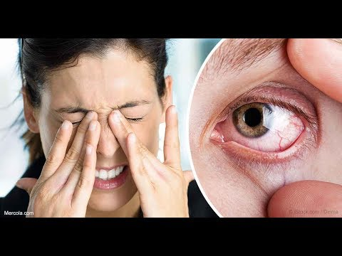 dry eye syndrome.. you'll need to incorporate these strategies