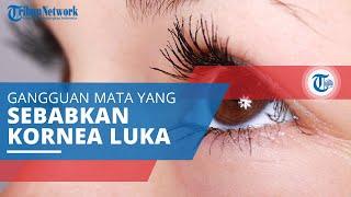 Uveitis, Peradangan pada Uvea atau Lapisan Tengah Mata Ditandai Satu atau Kedua Mata Terlihat Merah.