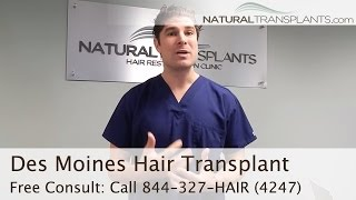 Best Hair Transplants Des Moines, Iowa | Hair Replacement Surgery