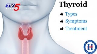 Thyroid Causes, Types & Suggestions | Good Health | TV5 News