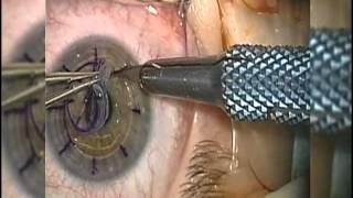 Látásjavító technika astigmatizmus, Ayur Read Pro – Ajurvédikus szemüveg a látásproblémák ellen