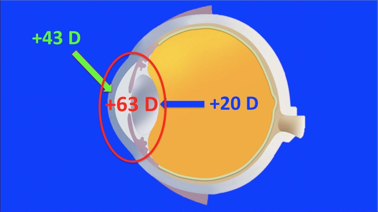 b3ef14def6 Óptica ocular y geométrica. Centro de Oftalmología Bonafonte. Barcelona