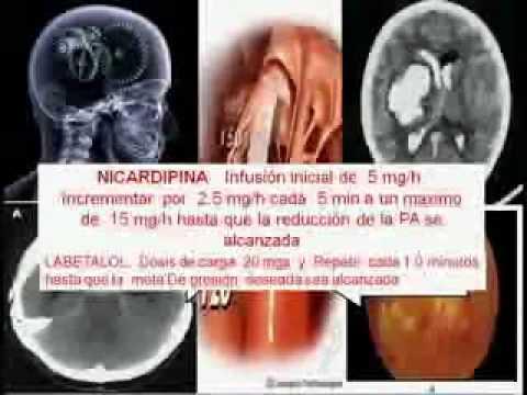 Crisis  Hipertensiva  2ºparte