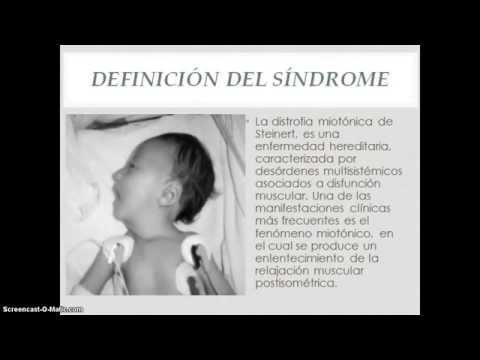 Distrofia Miotonica De Steinert Pdf