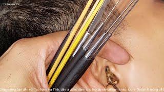 Asmr ear - Ear cleaning - lots of ear wax (video37)