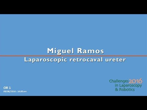 CILR 2016 - Miguel Ramos - Laparoscopic retrocaval right ureter