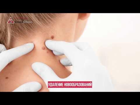 Удаление новообразований в Эс Класс Клиник Воронеж