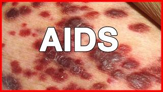 Information about HIV AIDS // Origin, History, Patient Zero, HIV Crisis