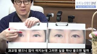 쌍꺼풀 재수술로  과교정되어 부릅떠지는 눈을 다시  재…