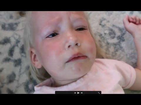 Baby has allergic reaction!