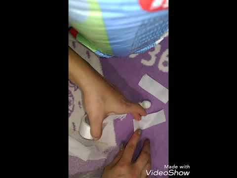 Вылечила пупочную грыжу у ребёнка пупочная грыжа