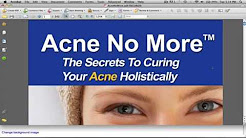 Acne No More Book Review - Is It Worth Buying?