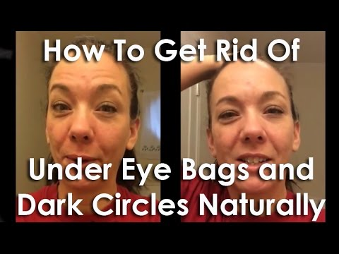 How To Get Rid Of Under Eye Bags and Dark Circles ...