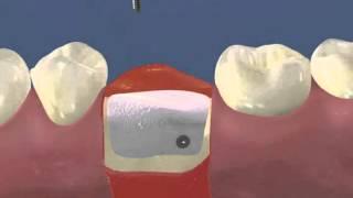 Костный блок и поднятие синуса в Краснодаре -  Имплантация и букальная аугментация гребня