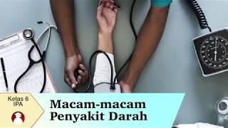 Jakarta, tvOnenews.com - Penyakit anemia merupakan kondisi ketika jumlah sel darah merah lebih renda.