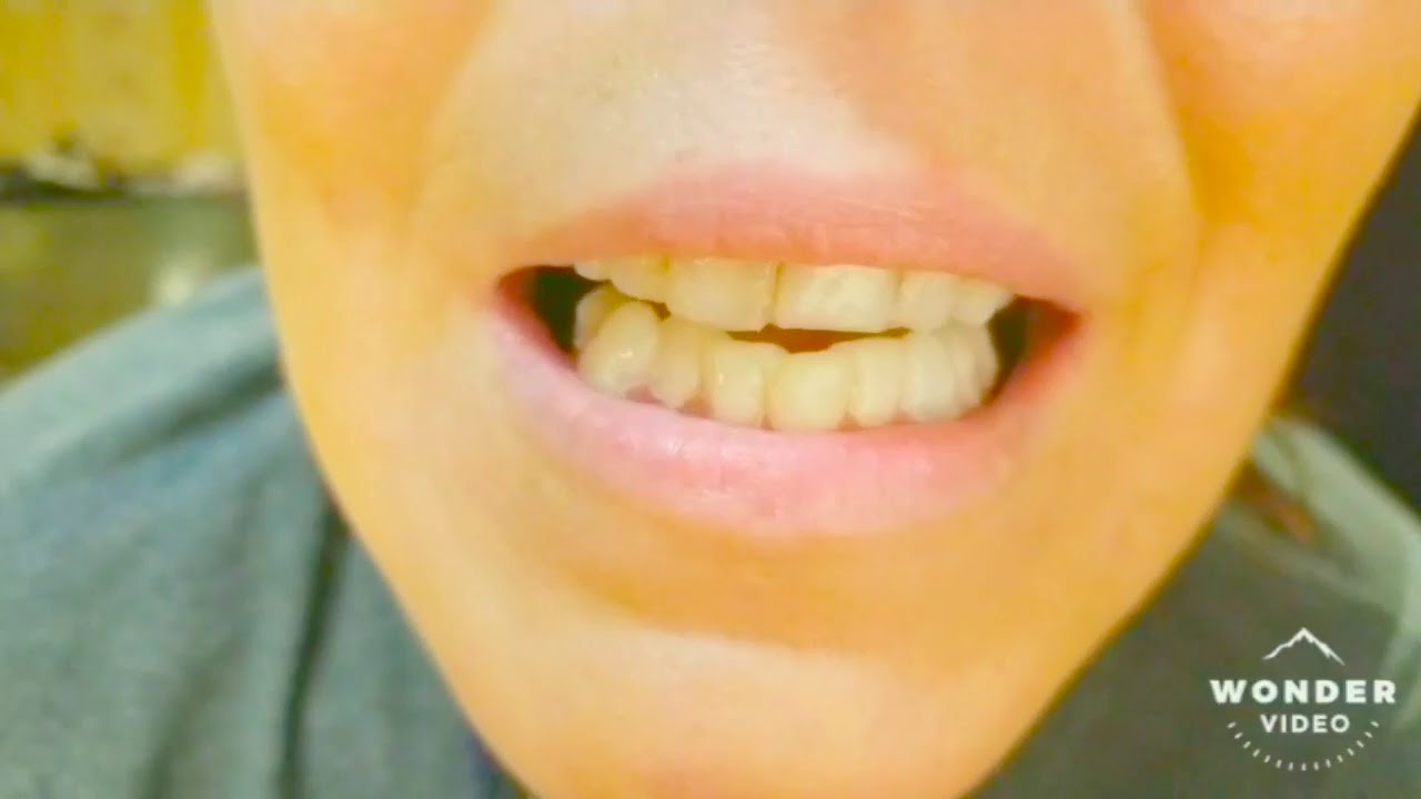 Homemade polymorph teeth covers/cosplay/not dentures.