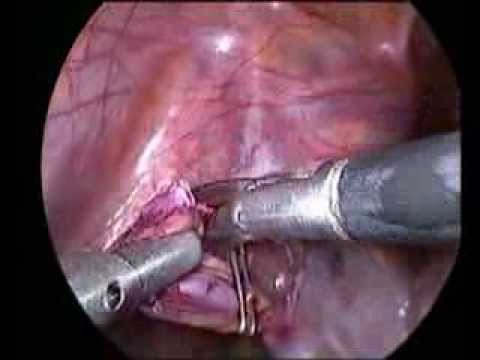 Laparoscopic Varicocelectomy In Adult by Akhter Ganai ...